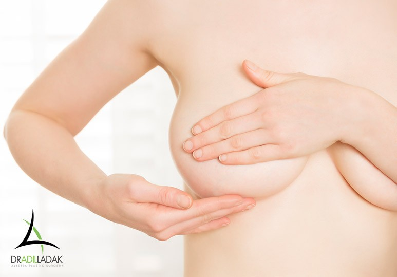 correcting breast ptosis in edmonton