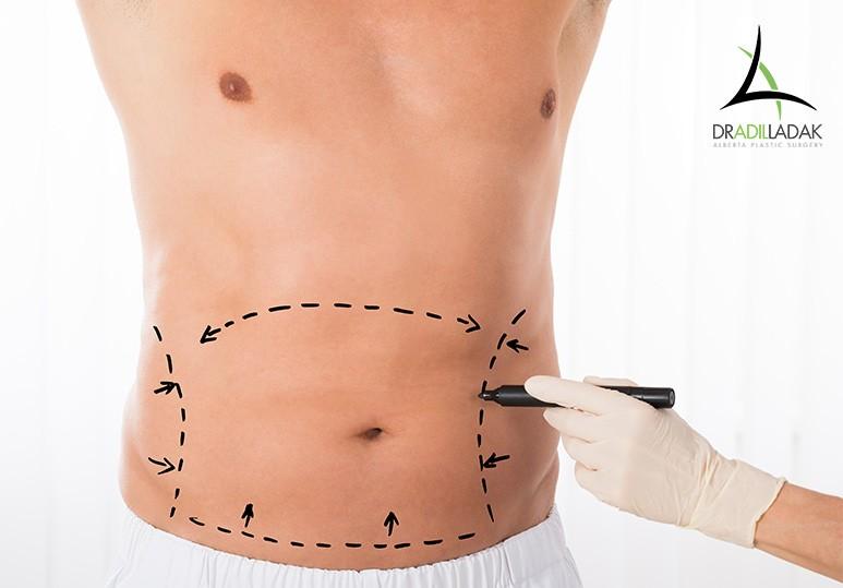 Abdominoplasty Edmonton