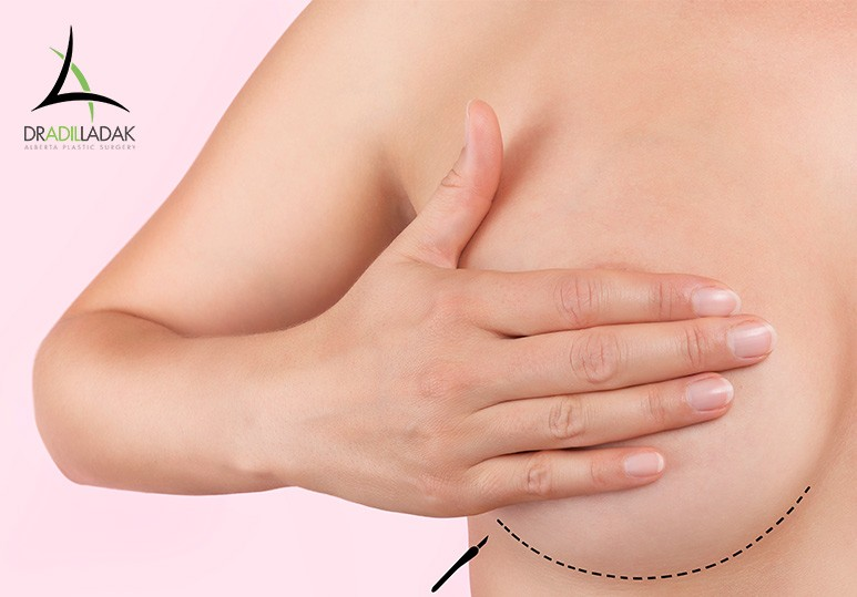 Breast Augmentation Edmonton