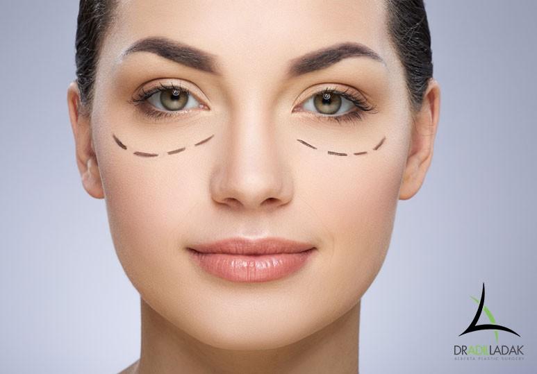 Edmonton Eye Surgery