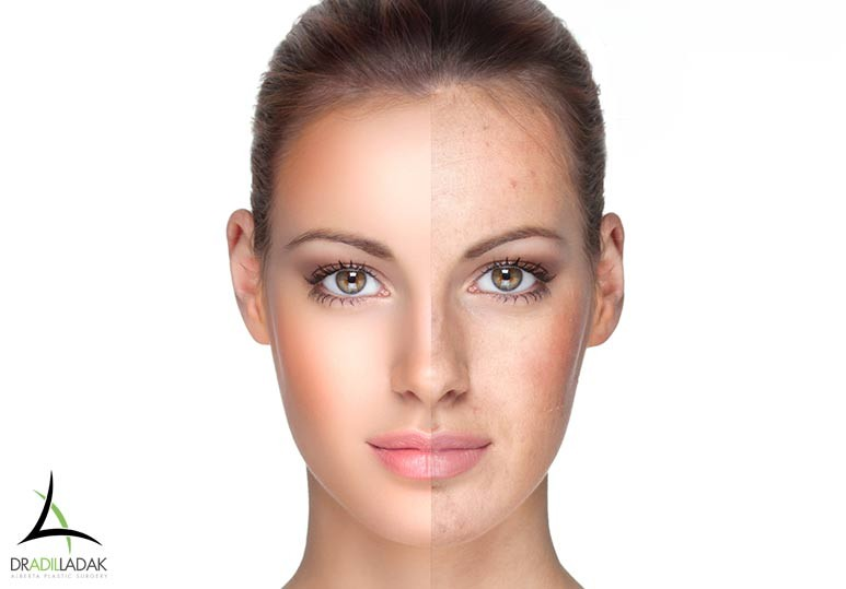 Alberta Plastic Surgery Adil Ladek Facial Rejuvenation
