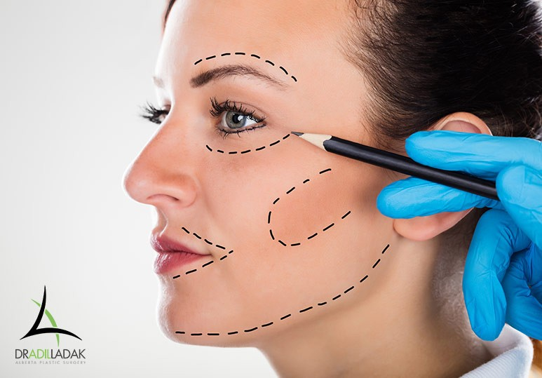 Alberta Plastic Surgery Dr. Adil Ladak Edmonton 10 Tips to Prepare for a Facelift