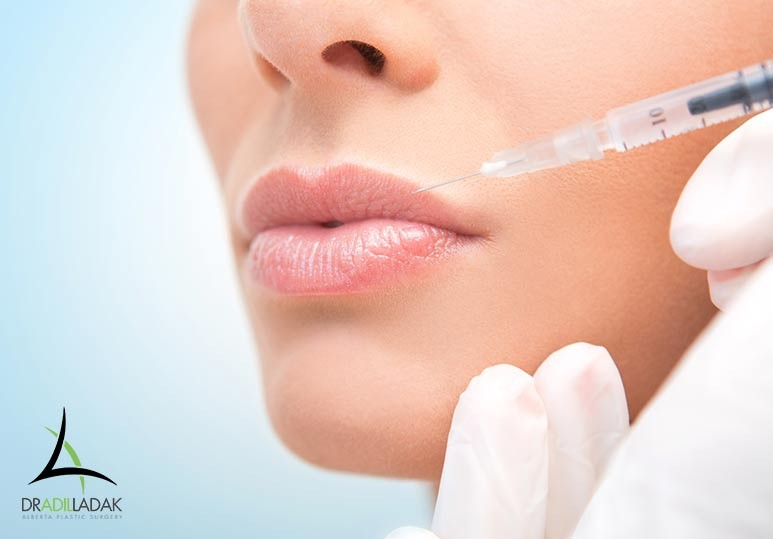 Alberta Plastic Surgery Dr. Adil Ladak Edmonton The Difference Between Botox Lip Flip and Lip Fillers