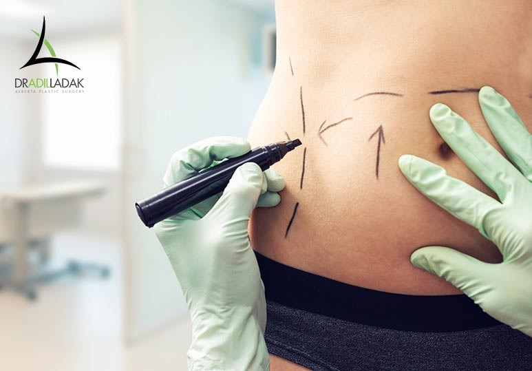 Our Edmonton Liposuction Specialists Explain How To Prep For Your Liposuction Procedure