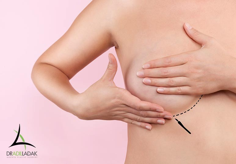How Will Breast Augmentation Affect The Nipple? Alberta Plastic Surgery Dr. Adil Ladak