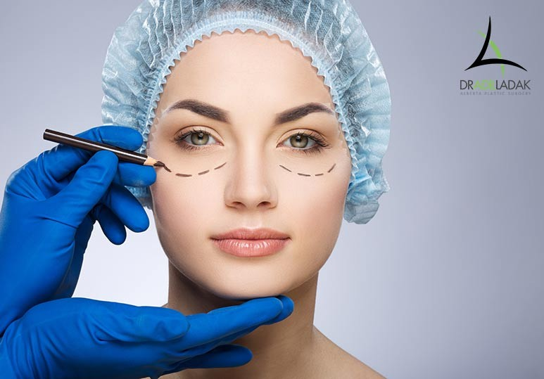 The Truth About Eyelid Surgery Alberta Plastic Surgery Dr. Adil Ladak