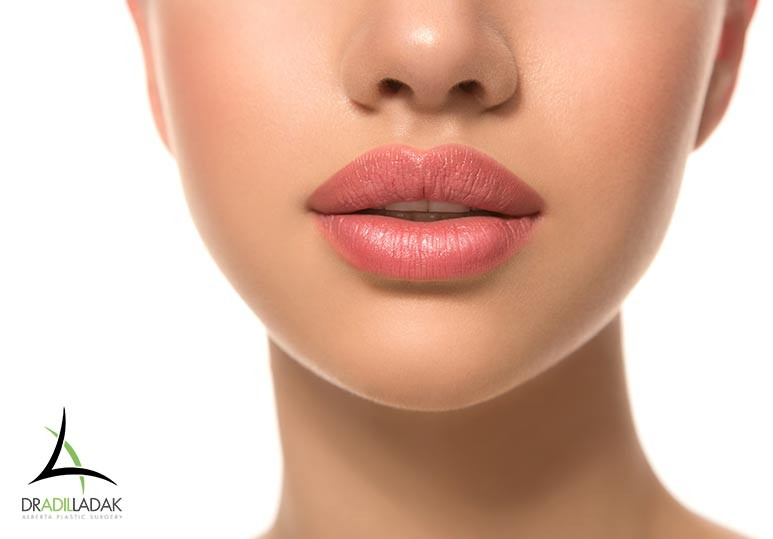 Lip Fillers Edmonton, Lip injections Edmonton
