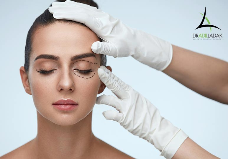 What to Expect From an Eyelid Recovery Period