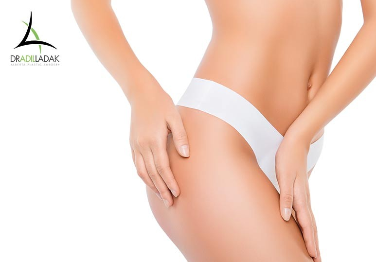 Liposuction Edmonton