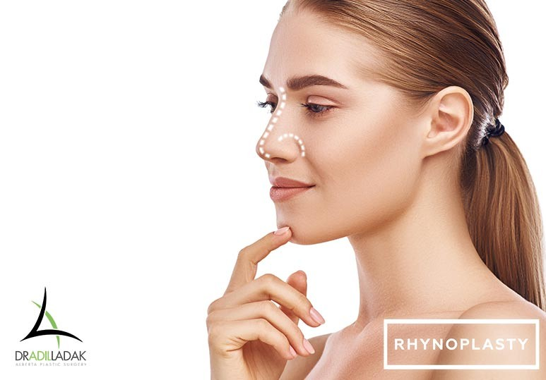 10 Signs You're a Good Candidate for a Rhinoplasty
