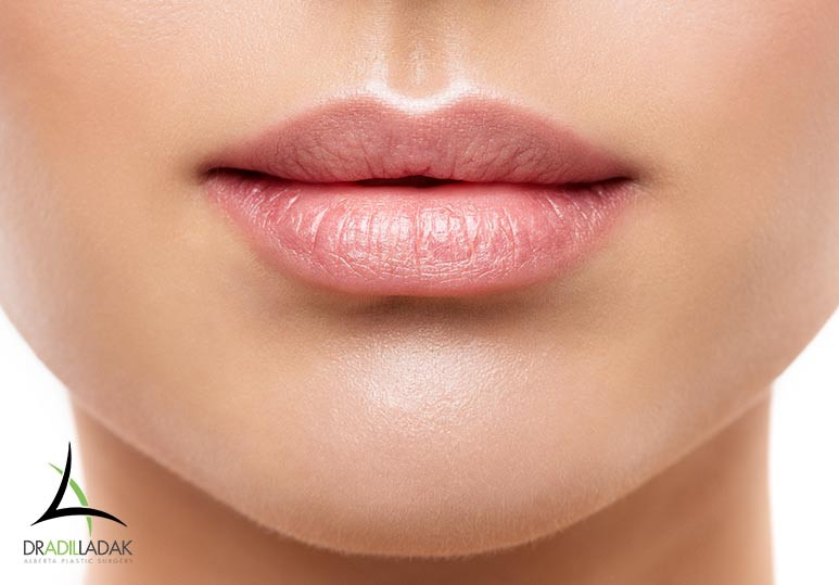 5 Reasons to Opt For Juvederm Lip Fillers