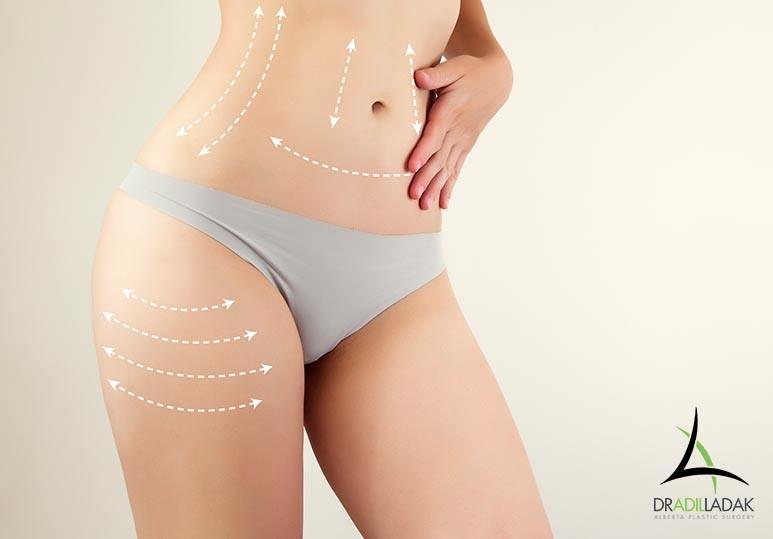 edmonton abdominoplasty, mini tummy tuck edmonton, edmonton plastic surgeon, edmonton body contouring, edmonton brachioplasty