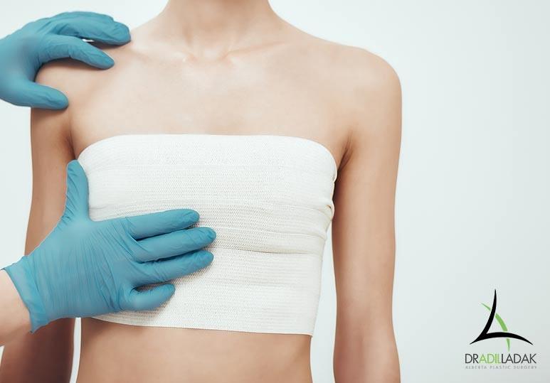 boob job edmonton, breast reduction edmonton, breast implants edmonton, edmonton breast mastopexy, breast lift edmonton, edmonton mastopexy