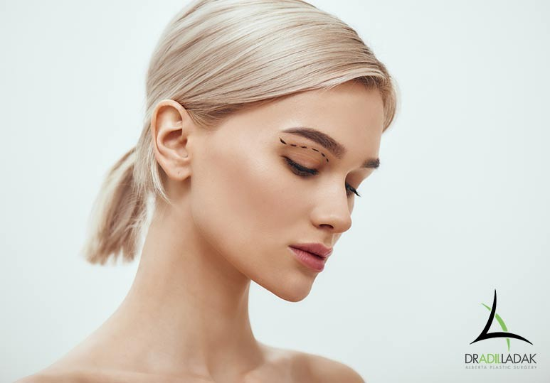 How to Decide Between an Eyelid Surgery and a Brow Lift