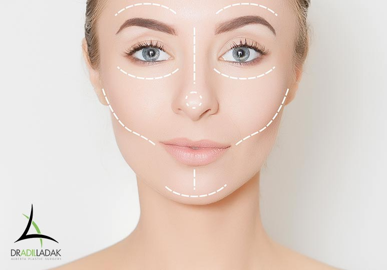 facial asymmetry surgery, facial asymmetry Edmonton, Edmonton plastic surgery, Edmonton plastic surgeon, Alberta Plastic Surgery