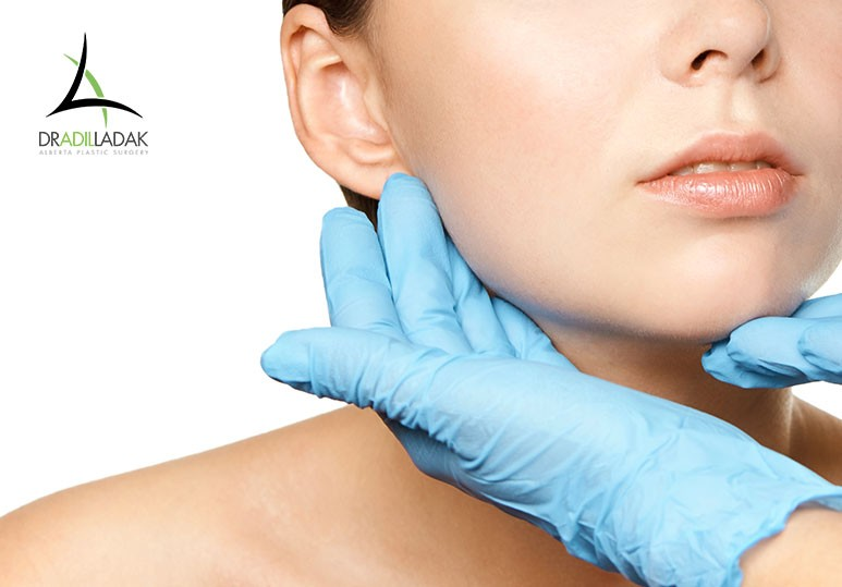 edmonton facelift, where to get a facelift edmonton, facelift edmonton, botox facelift edmonton, cost of facelift edmonton, botox facelift, non surgical facelift edmonton, edmonton plastic surgery, edmonton plastic surgeon, plastic surgery edmonton, Alberta Plastic Surgery
