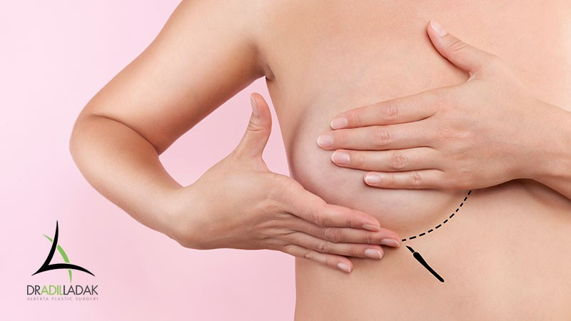 Breast Augmentation, Lift, or Augmentation Mastopexy: Which is Right For Me? - Edmonton Plastic Surgeon