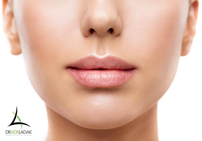 Edmonton Skin treatments, Lip Injections Edmonton, lip fillers Edmonton