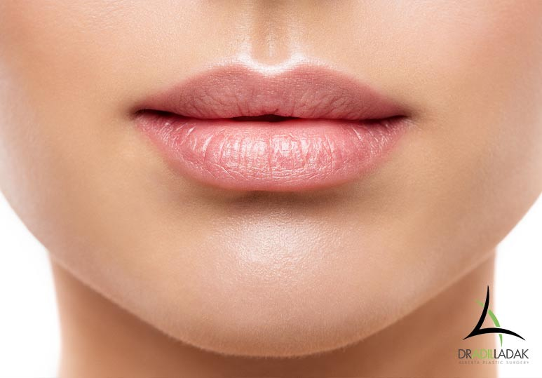 Lip Injections Edmonton