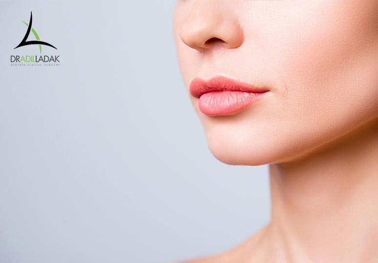 Lip Fillers Edmonton
