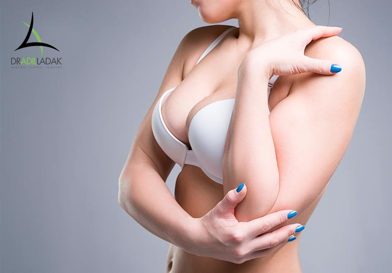 Edmonton Surgery, Breast Reduction Surgery