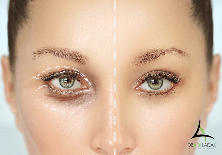 Is Eyelid Surgery Right for Me?