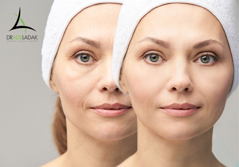 Under Eye Fillers: A Miracle Skin Treatment
