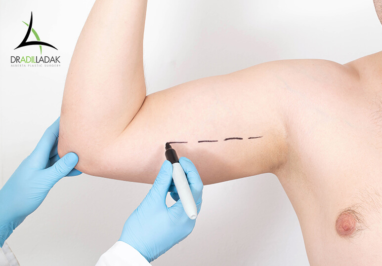 Body Contouring after Weight Loss: Getting Brachioplasty