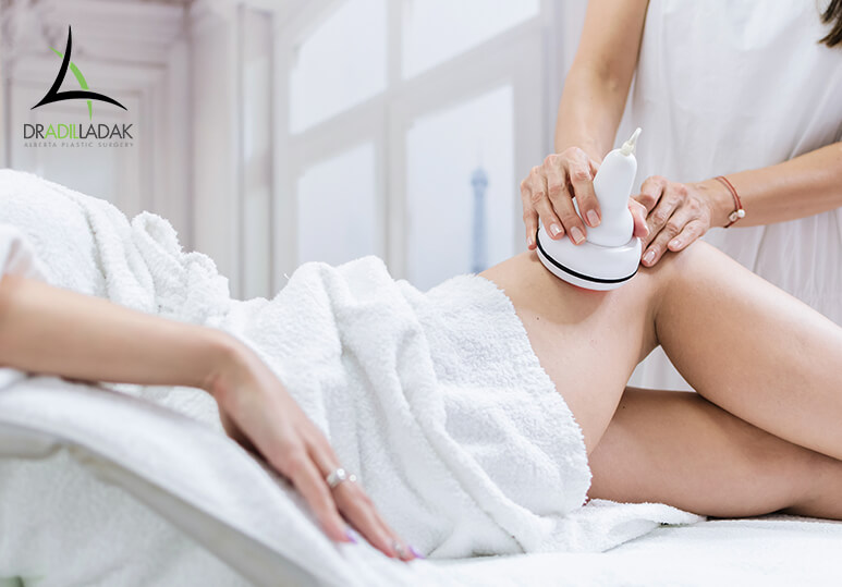 Body Contouring: Having a Medial Thigh Lift